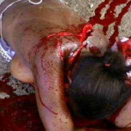 GENOCIDE - CONGO RAPE - CHOPPED ON NECK